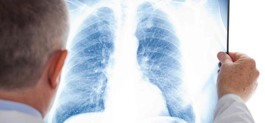 Фиброз легких, одышка и боли в груди: как легкие восстанавливаются после коронавируса?